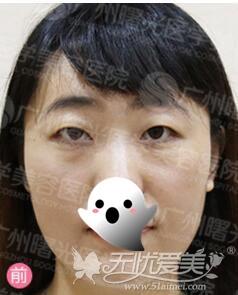 广州曙光护士双眼皮术前