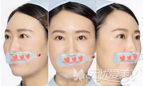 广州曙光护士做双眼皮手术案例
