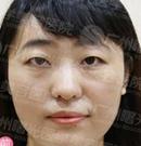 广州曙光本院护士亲自体验韩式双眼皮手术 前后对比照分享
