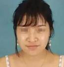 我对深圳希思说害怕手术隆鼻 于是徐荣阳医生为我注射隆鼻