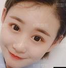 她在北京柏丽整形做双眼皮手术修复 看看变化有多大