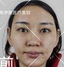 在昆明美伊莱做的隆鼻综合手术 你能看出整形痕迹吗?