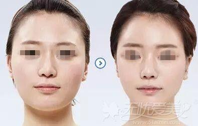 绍兴上虞艺美注射瘦脸针案例
