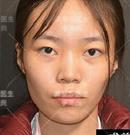 快来看看北京柏丽李劲良为我做的半肋+膨体隆鼻怎么样