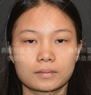 记录我找北京柏丽李劲良做面部脂肪填充+鼻综合真实恢复照术前
