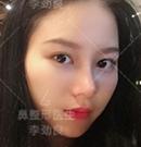 记录我找北京柏丽李劲良做面部脂肪填充+鼻综合真实恢复照术后