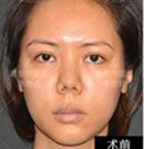 隆鼻失败怎么办?看我在北京柏丽做隆鼻修复术后效果