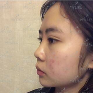 鼻综合术前侧面照