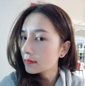 云南华美美莱做鼻综合手术后23天