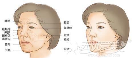 面部凹陷做脂肪填充