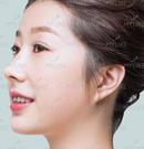 分享我在云南华美美莱做的达拉斯隆鼻+艺术面雕后的效果