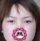 看金华维多利亚沈干为严女士做双眼皮+开眼角打造迷人电眼