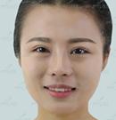 分享我在云南华美美莱黄在弘做上眼皮术后效果45天