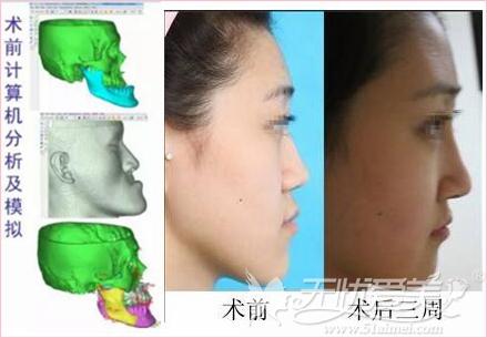 重庆美婵整形正颌手术案例