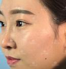 等了1个月终于能把这份昆明吴氏嘉美综合隆鼻案例分享出来