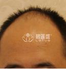 分享在北京碧莲盛做完植发手术8个月后 拥有一头浓密的头发