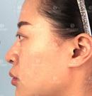 记录一下我在昆明吴氏嘉美做膨体鼻综合手术3个月恢复过程