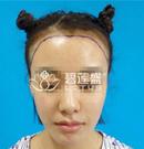 给大家看我在北京碧莲盛种植发际线的经历 快速摆脱大脑门