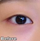 在北京京都时尚做完双眼皮手术后一个月就恢复的很自然