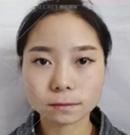 在昆明赫柏做了假体垫下巴+鼻综合手术后拥有了精致鹅蛋脸