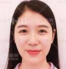 长沙雅美袁妍妍院长用玻尿酸解决顾客面部凹陷案例展示