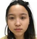 分享我在唐山花都做完鼻综合手术之后 拥有了韩式小翘鼻
