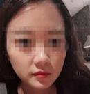 找上海首尔丽格朴兴植做下颌角+质骨切除术后告别了四方脸