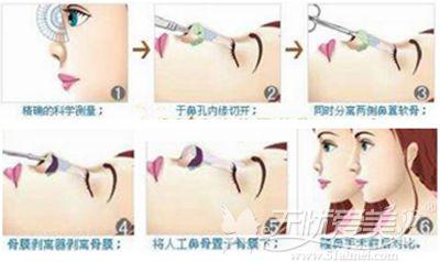 伊维美整形医院鼻综合手术过程
