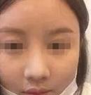 终于预约到广州曙光刘杰伟做了鼻综合手术 拥有了挺翘美鼻