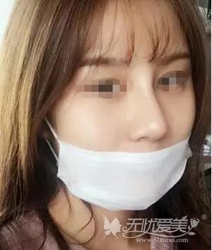 在广州曙光做鼻综合手术后2周