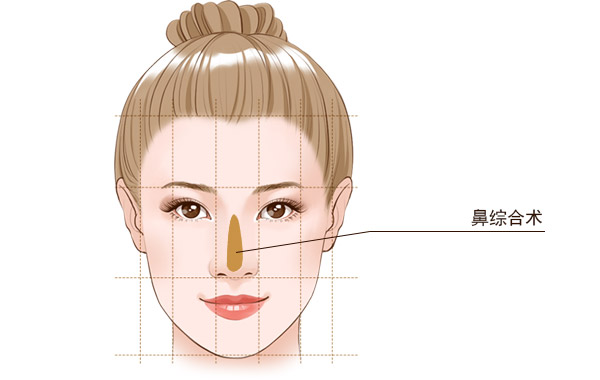 北京艺美隆鼻手术方法