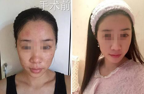 北京艺美面部脂肪填充案例