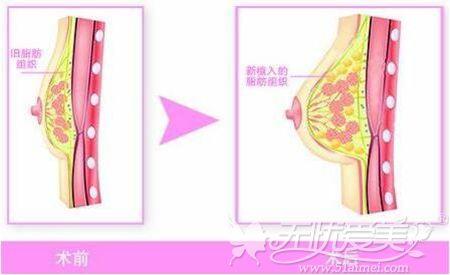 莆田海峡自体脂肪注射丰胸过程
