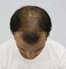 深圳鹏程做了植发手术后6个月告别秃顶 感觉年轻了不止10岁