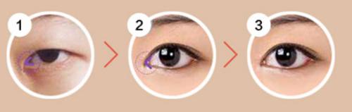 武汉硚口卓美双眼皮+开眼角手术案例