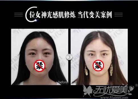 重庆当代祛斑前后对比案例