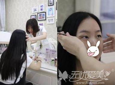 揭阳华美做双眼皮术前设计