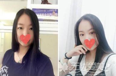 揭阳华美顾客做韩式双眼皮前后对比照