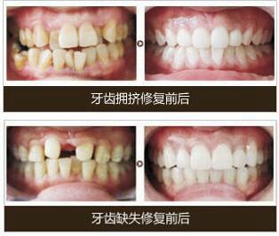 武汉美基元牙齿正畸案例