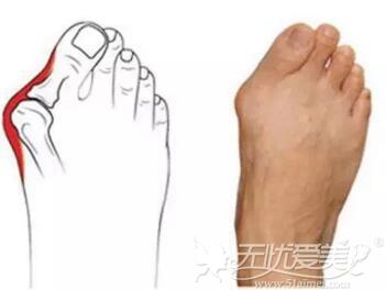 长沙哪能做足部大脚骨外翻矫正?看看长沙真爱真人矫正案例