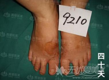 长沙真爱整形脚趾外翻矫正术后40天