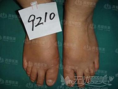 长沙真爱整形脚趾外翻矫正案例展示