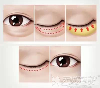 超声波去眼袋操作原理