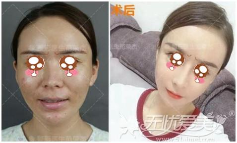 上海首尔丽格鼻基底填充案例