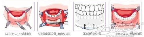 假体垫下巴的手术过程