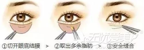 衢州芘丽芙内切法祛眼袋