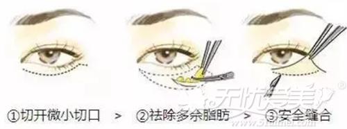 衢州芘丽芙外切法祛眼袋