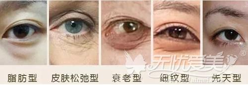 衢州芘丽芙可以改善的眼袋类型