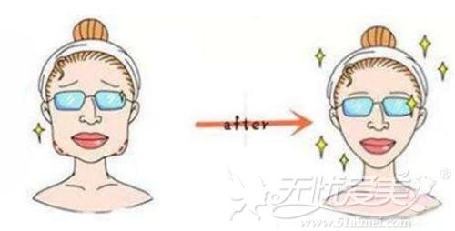 重庆真伊爱思特V-line复合轮廓精雕改脸型