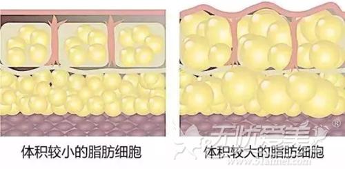深圳阳光解析脂肪细胞的大小对比